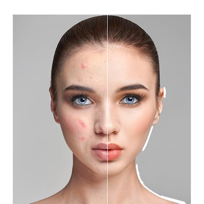 Tratamiento-Antiacne-Sapphira-Alicante-Estética-facial-avanzada-Sapphira-Privé-Alicante